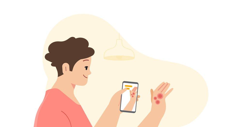 구글 피부 진단